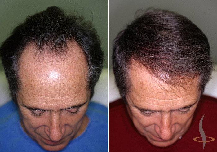 Left: before / right: 2 operations (total 1280 grafts)