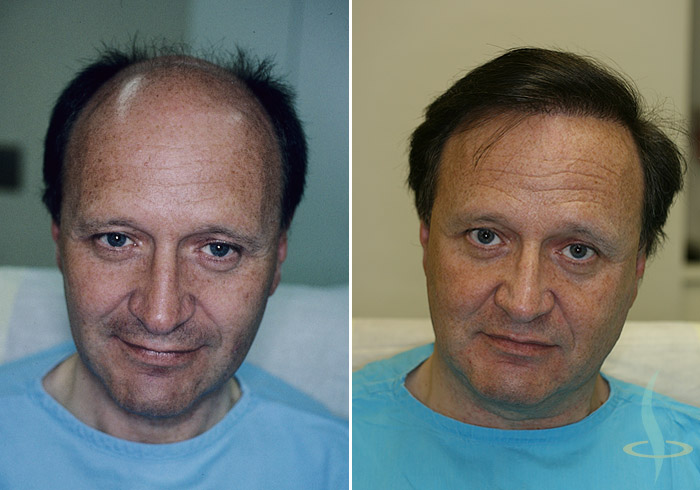 Left: before / right: after 3rd operation