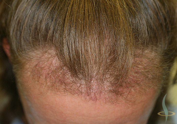 Hairline after 1st operation