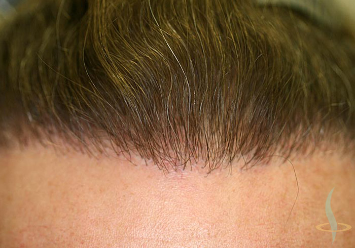 Hairline after 2nd operation