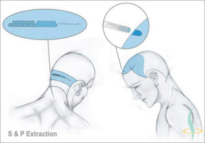 Published articles on possibilities and limitations of modern hair transplantation techniques