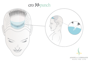 New article on self-hair transplantation published using crosspunch method