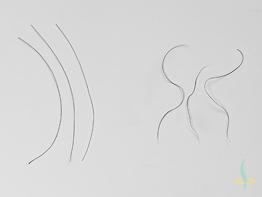 Bio-Engineering as Potential Source of Hair Transplants