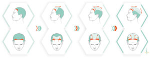 When should an autologous hair transplantation be considered at the earliest?